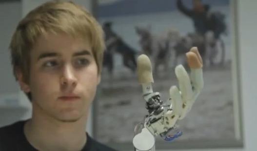 Une main bionique pilotée par la pensée